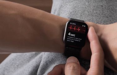 Apple Watch ECG meting